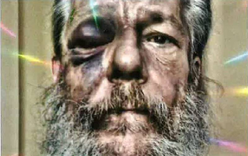 Richard Weisgerber's face after first attack