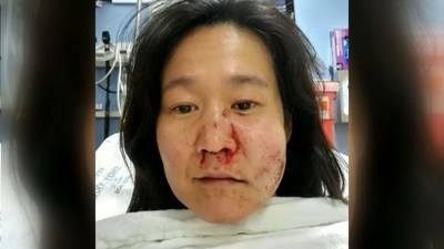 Why anti-Asian hate crimes go unreported